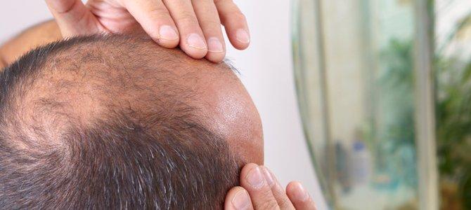 Previeni la caduta dei capelli con l'alimentazione