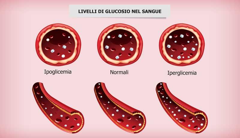 glucosio sangue insulinoresistenza